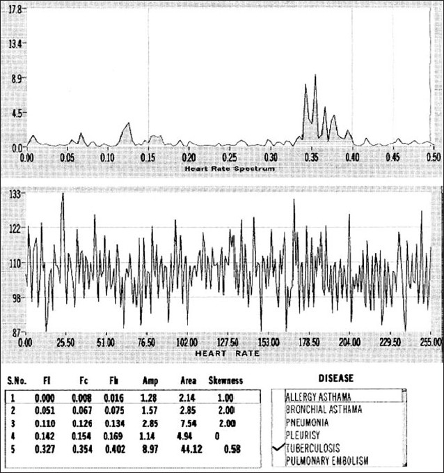 Figure 10: Typical heart rate fluctuations in time (lower) and frequency domain (upper) in a patient suffering from pulmonary tuberculosis