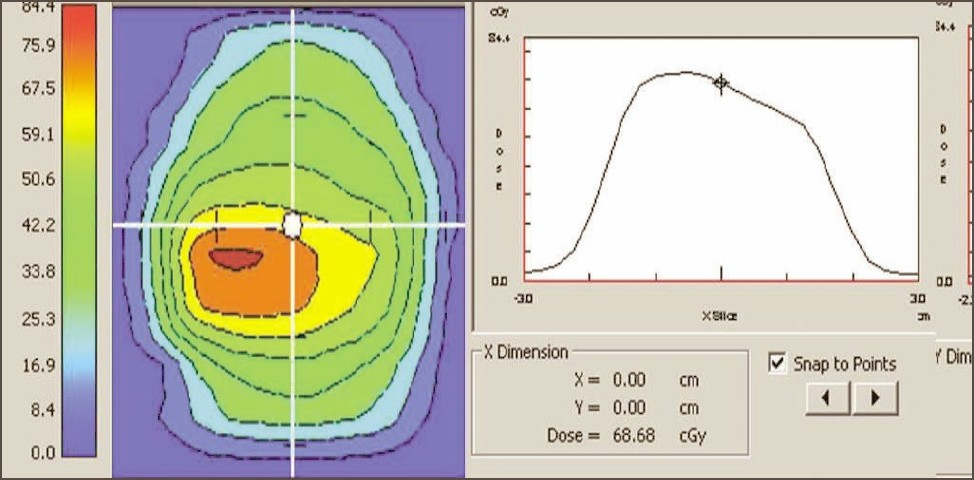 Figure 12a: Dose profile calculated by Diamond software indicating the dose at reference point for a IMRT plan