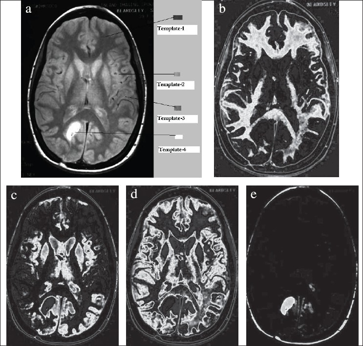 Figure 4: (a) Original brain CT image marked with templates, (b) Segment-1 corresponding to template-1, (c) Segment-2 corresponding to template-2, (d) Segment-3 corresponding to template-3, (e) Segment-4 corresponding to template-4