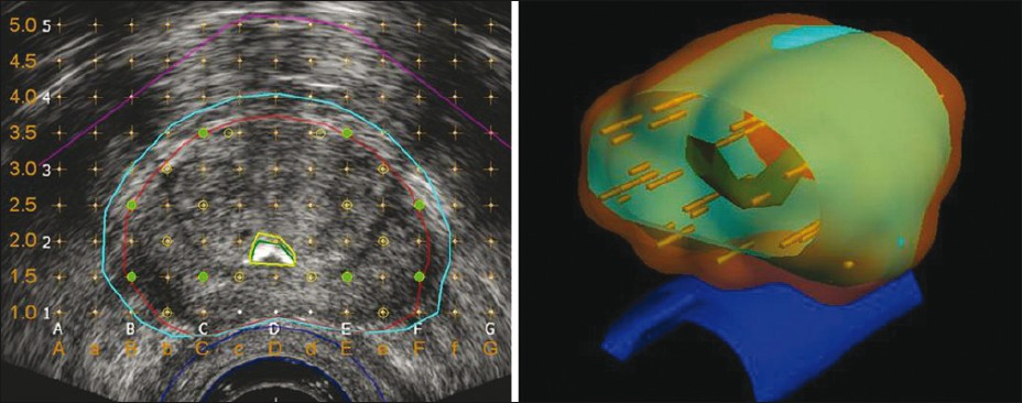 Figure 1: Pre-plan images for a 37.6-cc prostate implanted at our center with 0.5 U I-125 seeds. Left panel: Transrectal ultrasound image near mid-gland overlaid with contours delineating prostate (red), PTV (light blue), urethra (green), and rectum (dark blue). Also shown are the template grid, and seed (light green filled circles) and needle (yellow circles) locations. Right panel: 3D rendering of the 145 Gy isodose surface (translucent orange) covering the PTV (light blue). The prostate apex is at the front. Note that seed spacing in the needles is not uniform