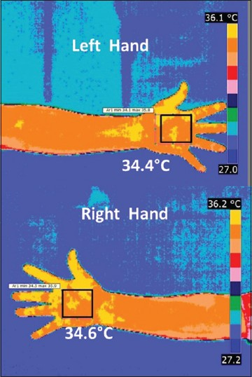 Figure 3: Right and left hand of normal male subject with TC = 151 mg/ dl and HDL = 49 mg/dl, temperature symmetry in the palm region can be observed clearly