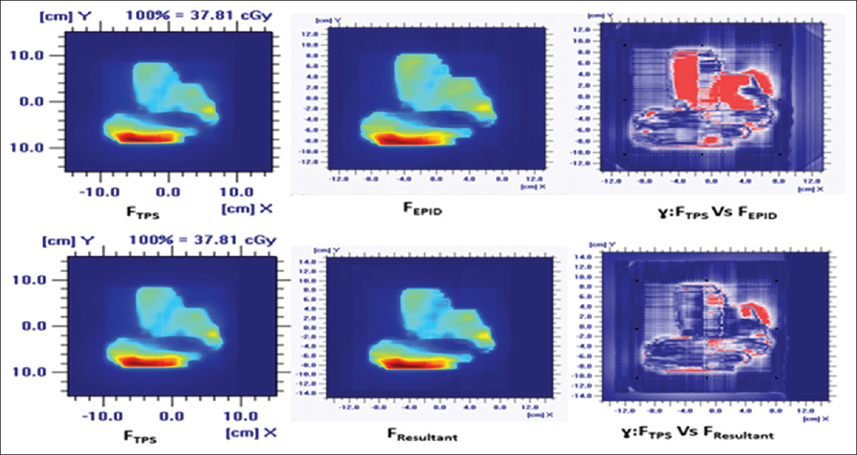 Figure 2: Dose distributions for a typical lung (thorax) patient for intensity-modulated radiotherapy at isocentric plane, F<sub>TPS</sub>, F<sub>EPID</sub>, F<sub>Resultant</sub> (=F<sub>EPID</sub>*F<sub>het</sub>) and their gamma matching for 3%-3mm gamma distribution. upper panel: ɣ<sub>3mmDAT-3%DD</sub>:: F<sub>TPS</sub> Vs. F<sub>EPID</sub> and lower panel: ɣ<sub>3mmDAT-3%DD</sub>:: F<sub>TPS</sub> Vs. F<sub>Resultant</sub>