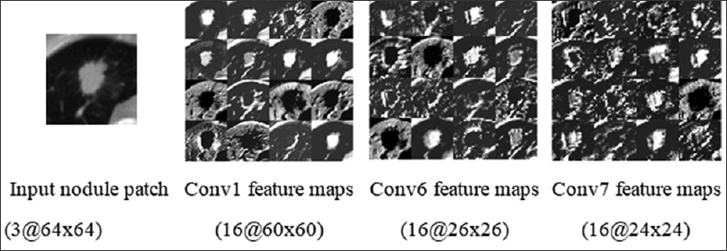 Figure 8: Visualization of the activations (feature maps) of the consecutive convolutional layers such as conv1, conv2, and conv3 for a nodule patch